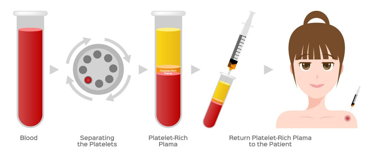 Diagram showing the platelet-rich plasma process.